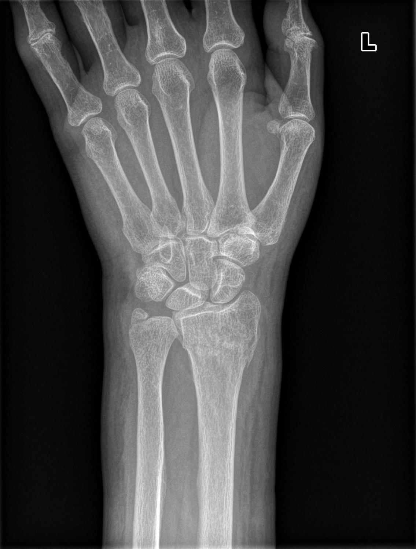 distal femur fraktur