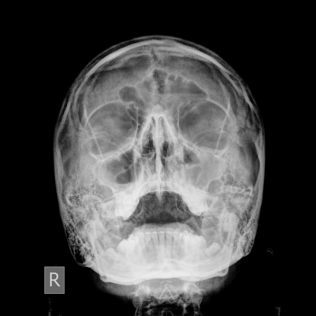 sinusitis x rays - Boat.jeremyeaton.co