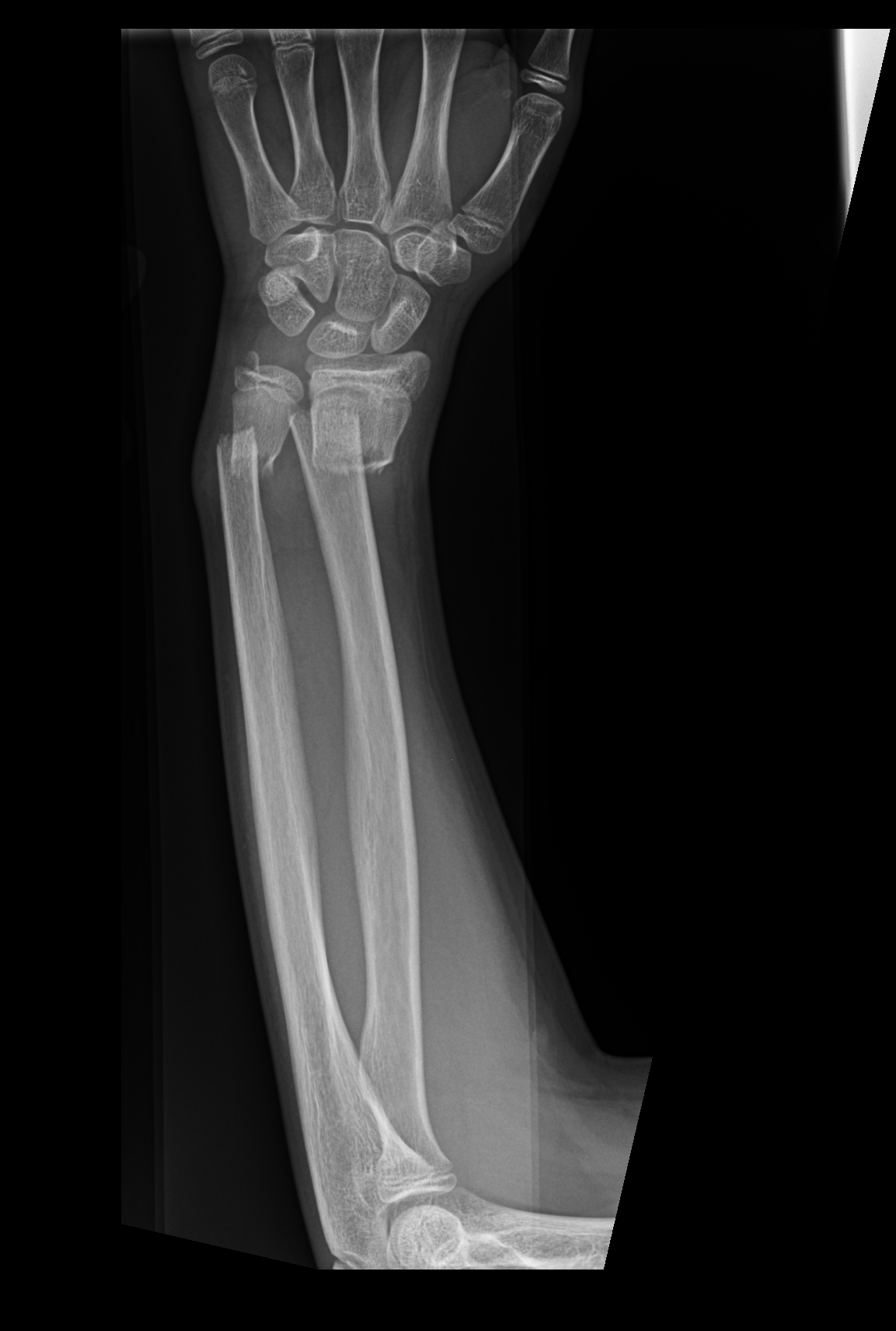 Xray Broken Arm BACKBONE 1 | bu...