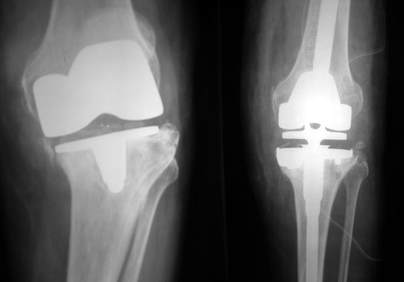 Knee Replacement 2 Buyxraysonline