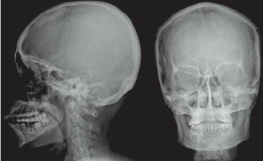 LATERAL AND FRONTAL VIEW OF NORMAL SKULL | buyxraysonline X Ray Views Of Skull
