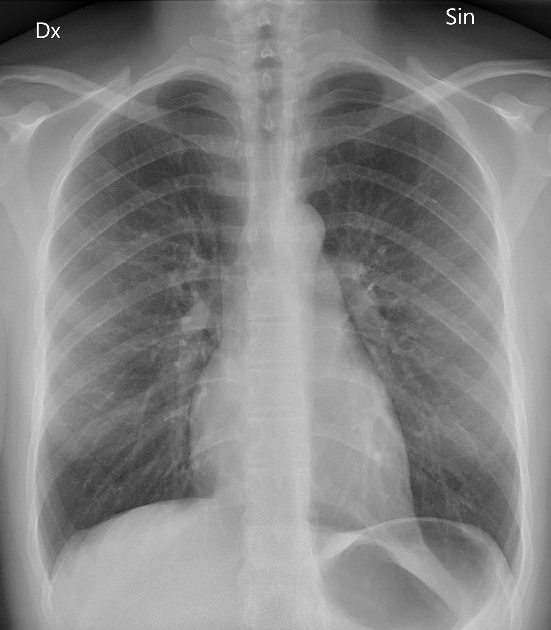 Normal Chest Xray 2 Buyxraysonline