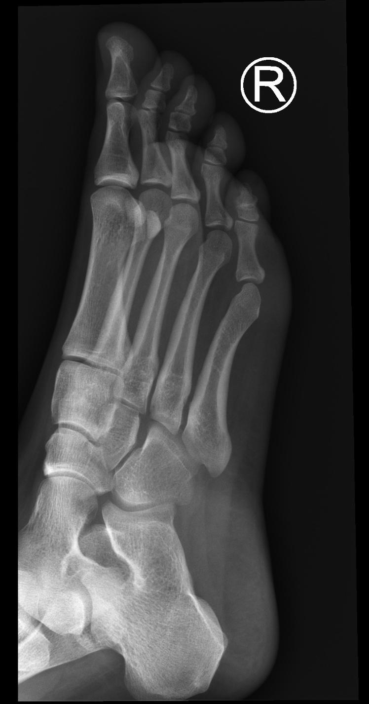 Normal Foot 2 Buyxraysonline