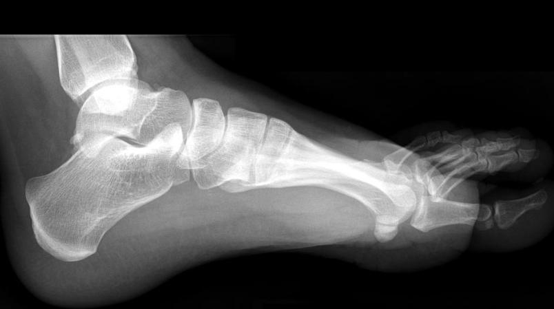 Normal Foot 8 Buyxraysonline