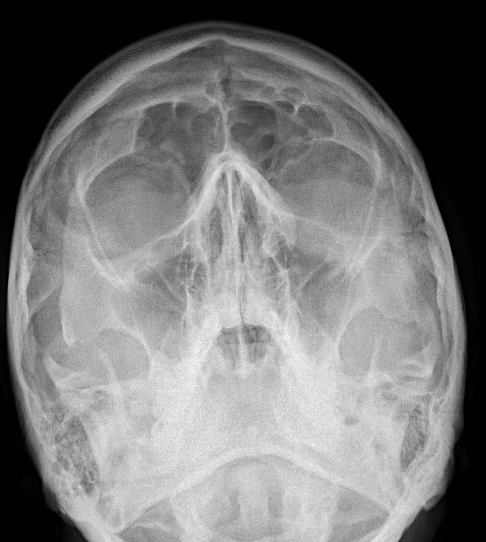 ZYGOMATIC ARCH FRACTURE   buyxraysonline Skull X Ray Views Merrills